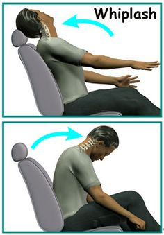 Neck Pain is Associated with Whiplash and Auto Accidents.  click the picture to read more