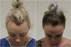 This Ballerina Lost Her Hair After Wearing It in a Bun Every Day