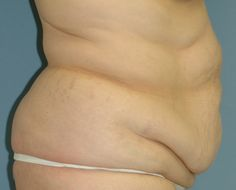 Abdominoplasty South Bend Before