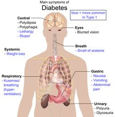 The most easily recognized symptoms of type 1 diabetes mellitus (T1DM) are secondary to hyperglycemia, glycosuria, and DKA.