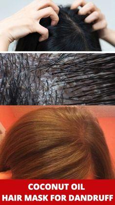 Coconut Oil Hair Mask For Dandruff : Works Immediately Hair Mask For Dandruff, Coconut Oil Hair Mask, Homemade Shampoo, Hair Oil, Hair Type, Your Hair, Hair Masks, Hair Products