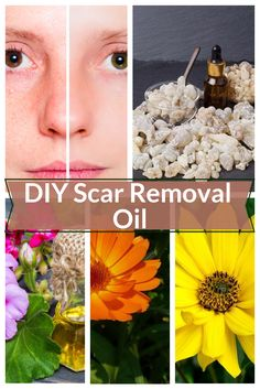 Are your scars bothering you? Want blemish-free skin? You don't have to buy expensive scar creams or oils, just whip up this quick and easy healing scar oil in your kitchen! Blemish Remedies, Skin Care Remedies, Acne Remedies, Face Scar Removal, Getting Rid Of Scars, Oils For Scars, Stretch Mark Remedies, Blemish Remover, Anti Aging Tips