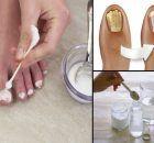 Las mujeres se estan volviendo locas con esta crema, ya que tu piel se ve muchos años más joven en solo pocos dias. – Info Viral