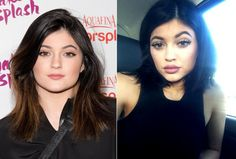 The magic of makeup? Or Lip Injections? #kyliejenner before and after.