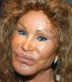 Jocelyn Wildenstein.  This is what $4,000,000,000 worth of plastic surgery will get you.  Umm, no thank you.