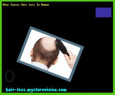 What Causes Hair Loss In Woman 212956 - Hair Loss Cure!