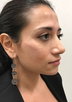 After photo of female treated with Restylane Lyft for Cheek Contouring Cheek Contouring, Diamond Earrings, Cosmetics, Face, Jewelry, Jewlery, Jewerly, Schmuck, The Face