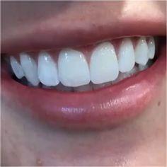 The Novice's Guide To Taking Care Of Oral Hygiene Dental Health, Oral Health, Dental Care, Best Teeth Whitening, Whitening Kit, Diamond Teeth, Get Whiter Teeth, Dental Veneers, Tooth Enamel