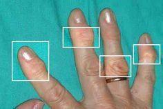 Doğal Artrit Tedavileri