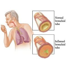 Signs & Symptoms Of Chronic Bronchitis