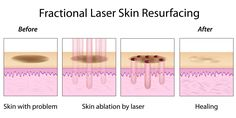 skin ablation by laser