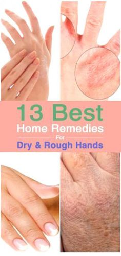 Psoriasis Free - 13 Best For Dry And Rough Hands - Professors Predicted I Would Die With Psoriasis. But Contrarily to their Prediction, I Cured Psoriasis Easily, Permanently & In Just 3 Days. Dry Hands Remedy, Dry Skin Remedies, Home Remedies, Natural Remedies, Warts On Hands, Warts On Face, Beauty Care, Diy Beauty, Beauty Hacks