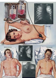 """genuinecowboy: """" Frank H. Netter Netter is the Norman Rockwell of Medical Illustration. Netter's contribution to the study of human anatomy is epochal. Anatomy Drawing, Human Anatomy, Lunge, Medical Illustration, Nutrition, Vintage Love, Young People, Art Inspo, Health Care"""
