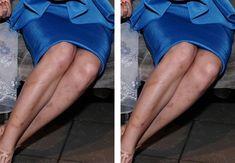 Làm thế nào để hết vết thâm ở chân?