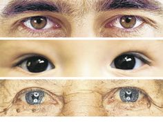 The Crucial Years for Protecting Your Eye Health. Great article from the WSJ #eyehealth