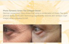 A safer way to smooth wrinkles around your eyes Green Tea Uses, Wrinkled Skin, Led Technology, Stem Cells, Healthy Skin, Collagen, Anti Aging, Smooth, Muscle