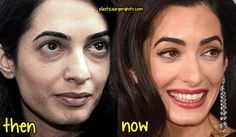 Amal Clooney Plastic Surgery Pictures Before And After 20 Celebs Who Are Completely Unrecognizable Without Makeup Cvs Just Unveiled Photoshop Free B. Amal Clooney, George Clooney, Celebrities Before And After, Celebrities Then And Now, Female Celebrities, Beautiful Celebrities, Photoshop, Plastic Surgery Pictures, Plastic Surgery Before After