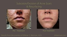 View the before and after gallery for the treatment of acne scars from real patients of Dr. Brian S. Biesman in Nashville, TN.