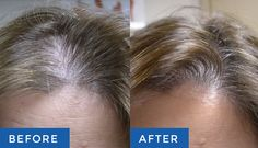 Our Laser Hair Re-growth Technology promotes the proliferation of thick, full and healthier-looking hair: Here's how it can help you: http://www.skintellectlaser.com/