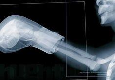 14 fascinantes rayos X que cambiarán tu forma de ver el cuerpo humano
