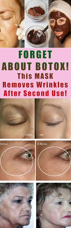 FORGET ABOUT BOTOX! This MASK Removes Wrinkles After Second Use! #beauty #women #health #remedy #fitness