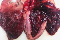 Early decomposition of the heart via @chaconlaw on Twitter