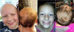 This beautiful little lady had no hair for 1 year, 8 months. Her mom shared her story: Monat testimonial for my 9 year old daughter who was diagnosed with Alopecia Universalis (complete hair loss head to toe) 2 years ago, before she starting growing hair back. She started seeing a naturopath in May 2016 where we started seeing some regrowth, but it wasn't until Nov. 2016 when we started the men's line on her that we started seeing major growth and thickness!!  #alopecia