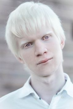 Alexandria Copperfield — Albino boy|Amal Sofi -...