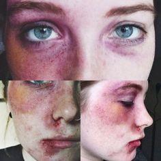 Black eye/bruising makeup