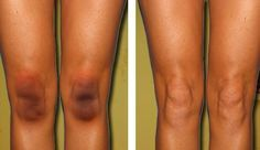 How to Get Rid of Black Knees and Elbows #skincare