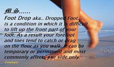 dieta drop foot