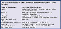 | Autor: www.zdn.cz, Zdroj: www.zdn.cz