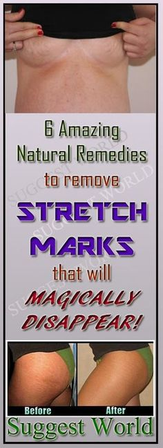 YOU WON'T BELIEVE YOU CAN REMOVE STRETCH MARKS FAST WITH THESE 6 NATURAL REMEDIES! #stretchMarks #health #remedies #skin #skincare