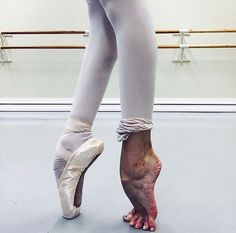 It looks so pretty but so many do not understand the pain involved in ballet. I bleed for this!