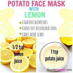 This potato face mask is effective for fighting acne, fading acne scars, lightening blemishes and evening out pigmentation