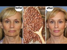 Japanese secret to looking 10 years younger than your age/anti aging remedy to remove wrinkles - YouTube My Beauty, Beauty Hacks, Hair Beauty, Anti Aging, Face Home, Condensed Milk Recipes, Anti Ride, Les Rides, Wrinkle Remover