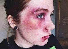healing bruise blackeye fair skin blackeye