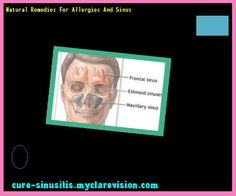 Natural Remedies For Allergies And Sinus 201821 - Cure Sinusitis
