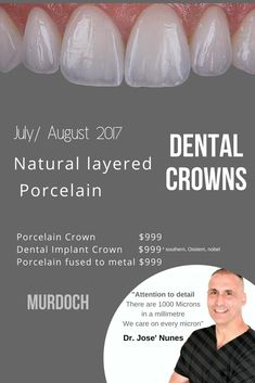 Cost of a Dental Crown in Perth. We focus on extreme attention to detail. From the length of the crown, proportions, translucency on the incisal edge and the 6 stages. Anti-aging Dental Crowns see Dr Jose Nunes 0893154514 Dental Implant Placements. Implants Dentaires, Dental Implant Surgery, Oral Surgery, Implant Dentistry, Best Dental Implants, Tooth Extraction Aftercare, Tooth Extraction Healing, Surgery Logo, Surgery Humor