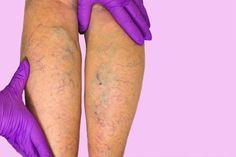 ciucuri pe picior cu simptome varicoase)
