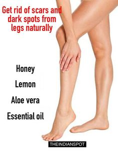 Look after your skin with one of these tips.Is a wonderful time to take care of your skin and keep looking and feeling healthy. Look at all these should have skincare hacks. Remove Scars On Legs, Leg Scars, Silky Smooth Legs, Smooth Skin, Dark Spots On Legs, Getting Rid Of Scars, Get Rid Of Blackheads, Pimples, Skin Care Remedies