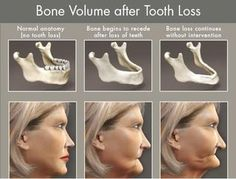 Bone Volume after Tooth Loss - Dr. Tracht and Dr. Briskie Pediatric Dentistry | #RochesterHills | #MI | http://www.kidsgrins.com/