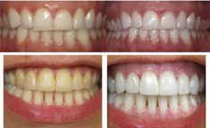 You teeth are far away to look like white pearls? There is no need to empty your wallet for whiten treatments from the market of whiten pro. teeth white no baking soda Baking Soda Lemon Juice, Teeth Care, White Teeth, Light Hair, Dental Care, Clean Recipes, Teeth Whitening, Pearl White, Cleaning Hacks