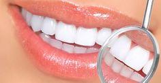 Amil Dental Win Clareamento por Estética,Prótese e Ortodontia Completa