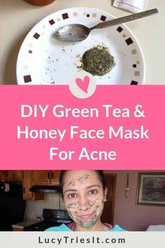Are you experiencing acne inflammation? Then you might want to try this DIY green tea and honey face mask recipe. Once you experience the skincare benefits of this mask, you'll be sure to make it a re Face Scrub Homemade, Homemade Face Masks, Diy Face Mask, Cystic Acne Treatment, Green Tea And Honey, Diy Masque, Beauty Hacks For Teens, Honey Face Mask, Top