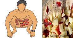 El colon es la parte del cuerpo donde más se acumula toxinas, a causa de todos los desechos tóxicos que el organismo expulsa por esta parte del cuerpo. El exceso de toxinas en el cuerpo es la causa más común de la obesidad, como también pueden causar dolores de cabeza repentinos, fatiga y falta de ...