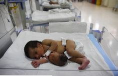 Too Poor for Prenatal Care, Baby Born with 2nd Head Attached to Stomache