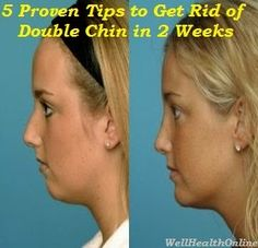 5 Proven Tips to Get Rid of Double Chin in 2 Weeks #chinfat #doublechin #beauty #remedies