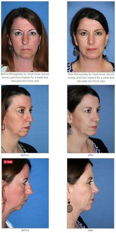 Before & After Rhinoplasty for Hook Nose, Dorsal Hump, and Chin Implant for a weak and retruded chin.