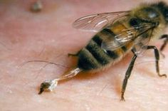 Arı Sokmasına İyi Gelecek Doğal 5 Yöntem